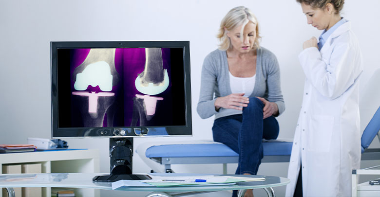 Surgery for knee replacement is being discussed between this doctor and her middle aged female patient.