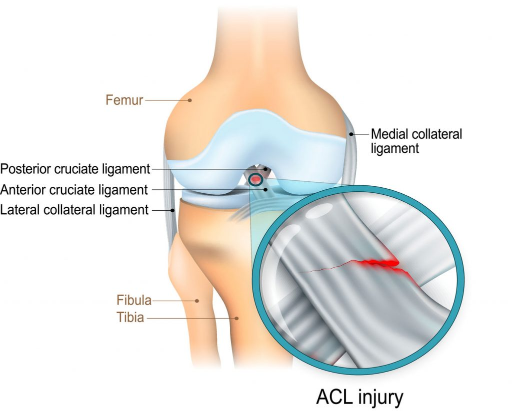 Knee ligament anatomy diagram showing the ACL, MCL and LCL knee ligament. Shown is a tear ACL.