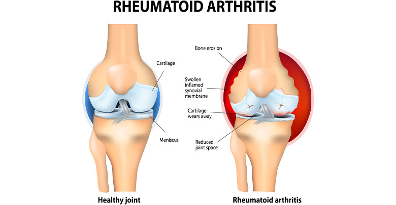 Anatomy of the knee joint comparing a healthy knee and a rheumatoid arthritis knee joint.