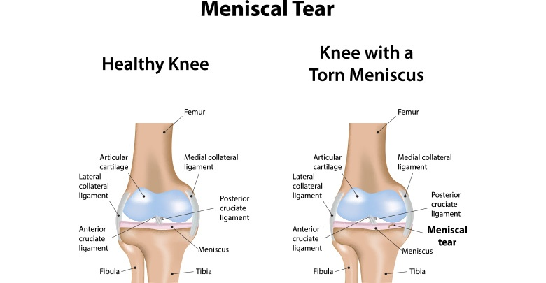 This image shows the anatomy of the parts of the knee. It also shows a normal healthy knee, and a torn knee meniscus in the other image.
