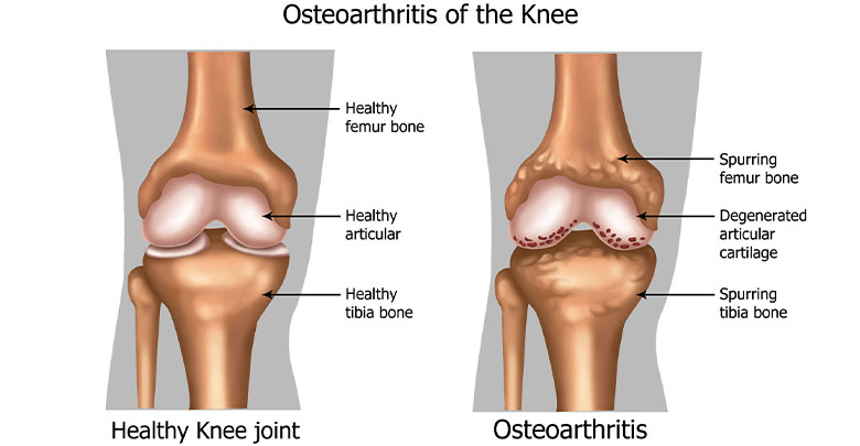 Osteoarthritis diagnosis is made based on the clinical findings - here you can see an image of a normal knee, and one with a diagnosis of osteoarthritis.