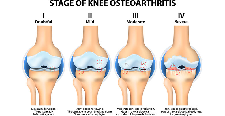 Following a diagnosis of osteoarthritis, the disease gradually progresses as shown here in this image showing stages 1 - 4.