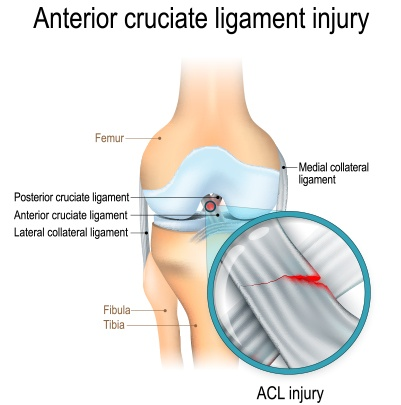 Symptoms of ACL tear are due to a tear of the ligament intside the joint capsule